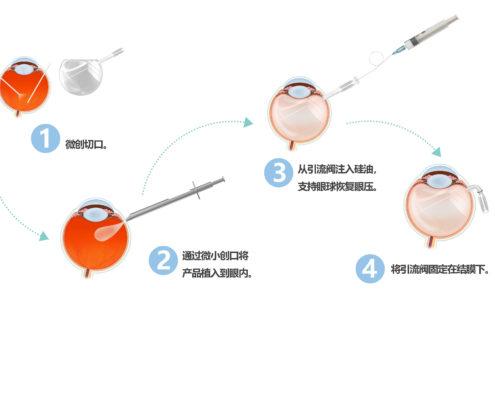 人工玻璃体球囊植入示意图